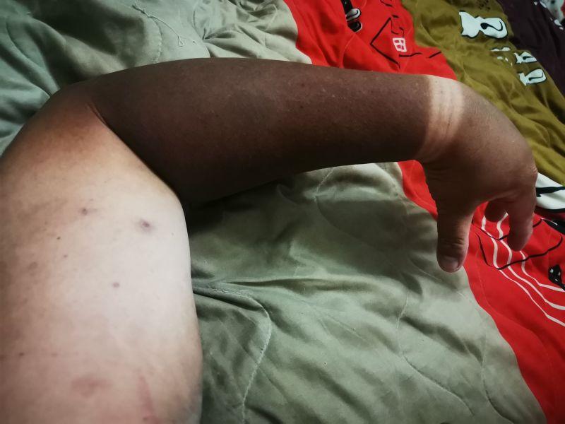 ▲網友透露自己去參加媽祖遶境兩天,沒防曬的結果是手臂完全「變色」。(圖/爆廢公社)