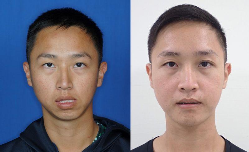 ▲27歲的李先生表示,接受正顎手術後,不只變帥了,睡眠品質也轉好。(圖/成大醫院提供)
