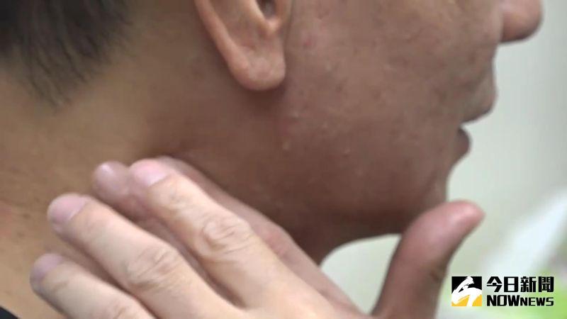 ▲老翁的病痛點確實在中耳,但他用內視鏡檢查,發現患者的左側口咽壁靠近扁桃腺下方有1顆腫塊。(圖/記者陳雅芳攝,2020.07.04)