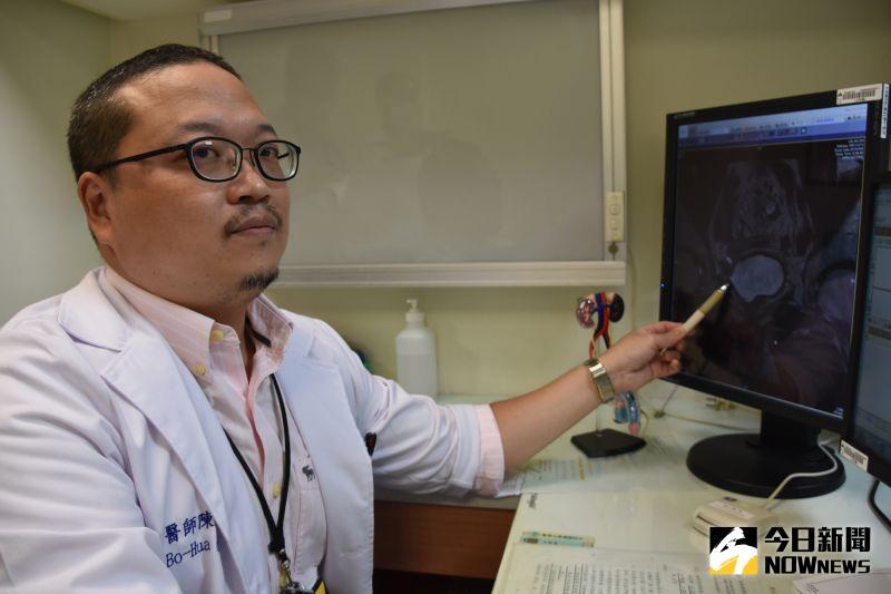 ▲陳柏華表示,經過三個月免疫療法,林先生膀胱腫瘤消失了。(圖/記者陳雅芳攝,2020.07.08)