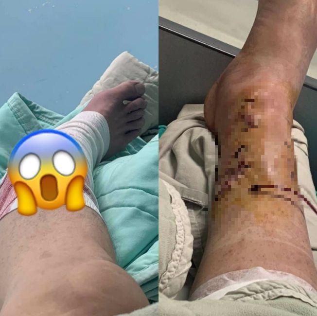 ▲男網友右腳慘摔斷腿。(圖/翻攝自臉書社團《爆料公社》)