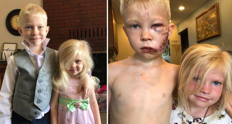 6歲童護妹被狗咬到「毀容」 《復仇者聯盟》全出動送暖