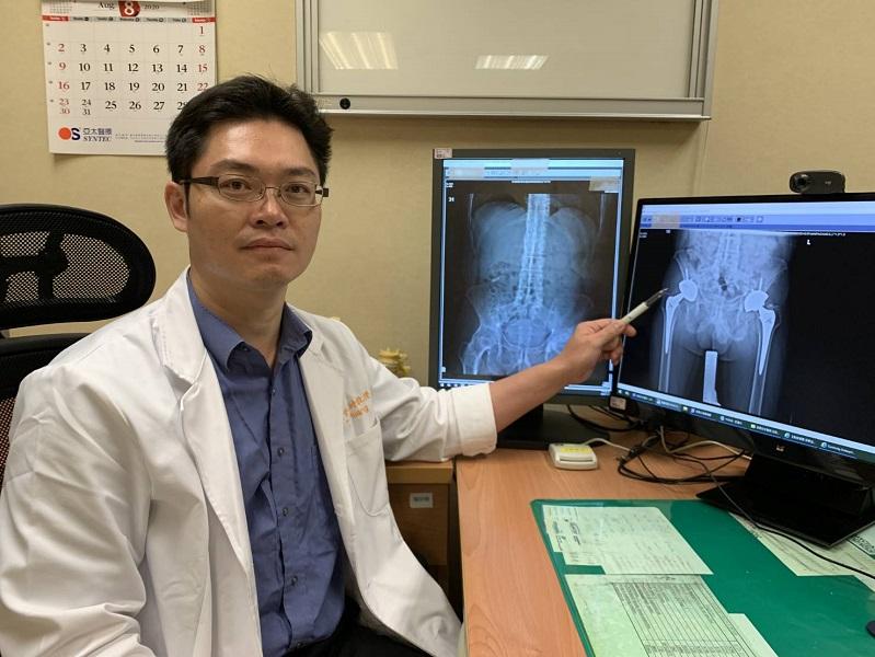 影/治療僵直性脊椎炎 病人需持續伸展筋骨舒緩