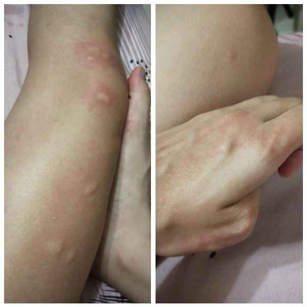 ▲女網友PO出被蚊子狠咬的照片。(圖/翻攝自《Dcard》)