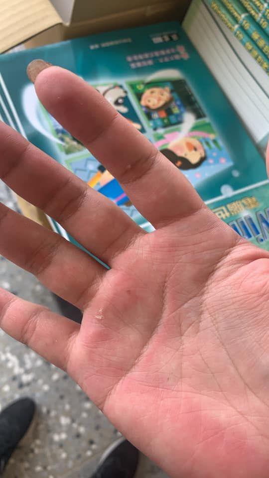 ▲原PO貼出照片,只見她的手因搬貨而導致破皮。(圖/翻攝《爆怨公社》)