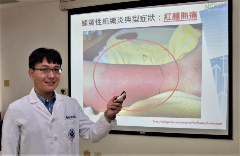 皮膚紅腫熱痛不容忽視 蜂窩性組織炎會截肢