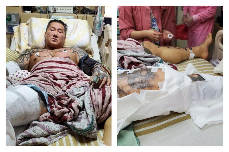 ▲館長遭槍擊後,住院照片首度曝光。(圖/翻攝自飆捍臉書)