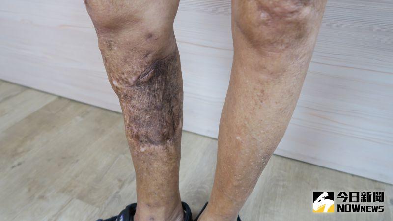 ▲張女士右小腿併發慢性骨髓炎加上骨折不癒合。(圖/記者陳雅芳攝,2020.09.02)