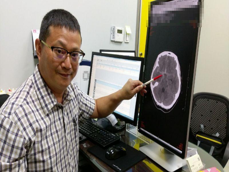 女子爆炸性頭痛腦動脈瘤破裂 醫:手術猶如拆炸彈