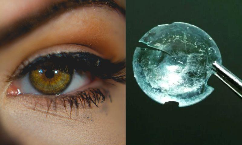 <b>隱形眼鏡</b>「藏在眼裡28年」!驚人真相曝光 網愣:太恐怖