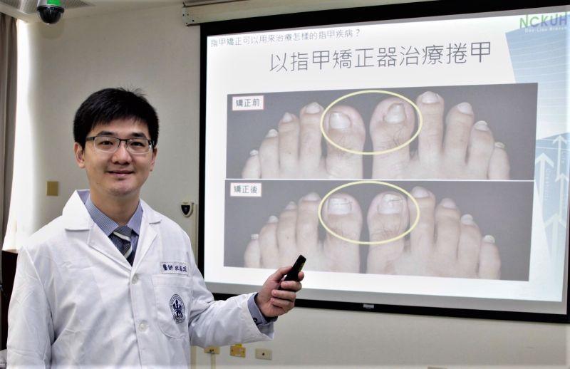 ▲杜威廷醫師說明指甲矯正已取代部分捲甲和嵌甲病人的手術治療。(圖/記者蘇榮泉攝,2020.10.13)