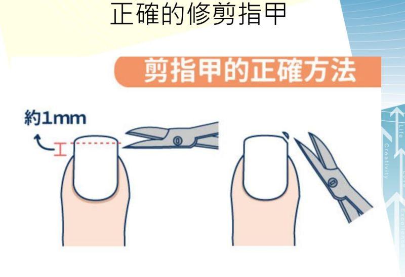 指甲矯正治捲甲及嵌甲