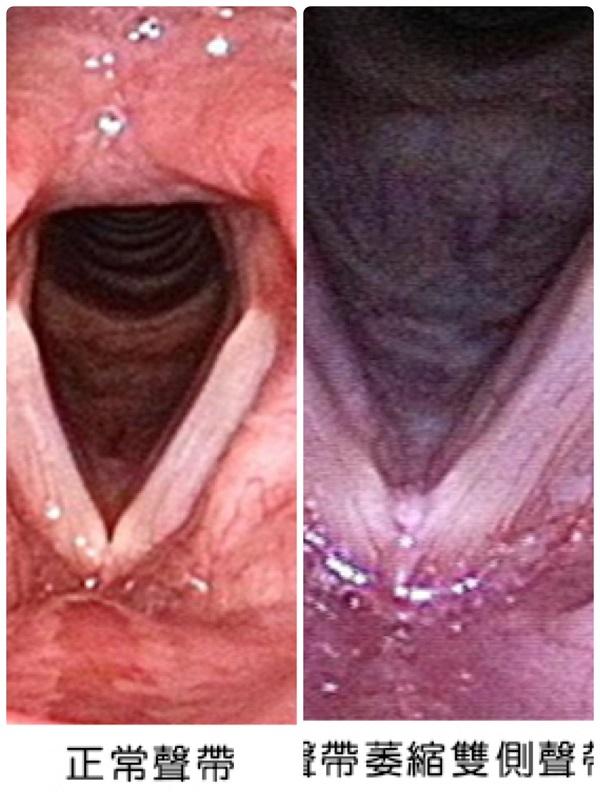 左為正常聲帶,右為雙側聲帶萎縮及組織凹陷。(圖/記者陳惲朋依長庚醫院提供圖片併編)