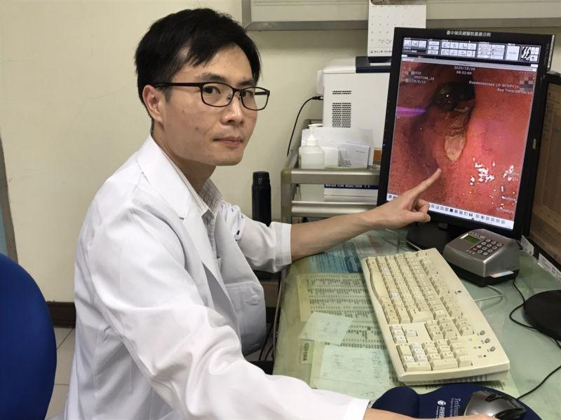 幽門螺旋桿菌會致胃癌 服抗生素加阻斷劑可達90%治癒率