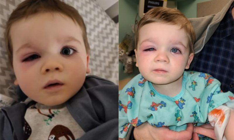 ▲男童眼睛非常紅腫。(圖/翻攝自Facebook