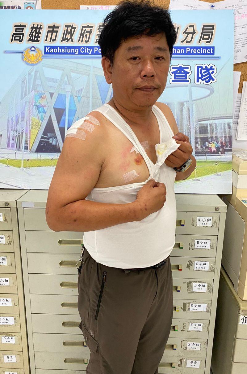 ▲鳳山分局偵查隊小隊長陳昭元為防止犯嫌逃跑遭犯嫌咬右胸,右胸口傷痕清晰可見,手腳也有多處擦挫傷。(圖/記者郭凱杰翻攝)