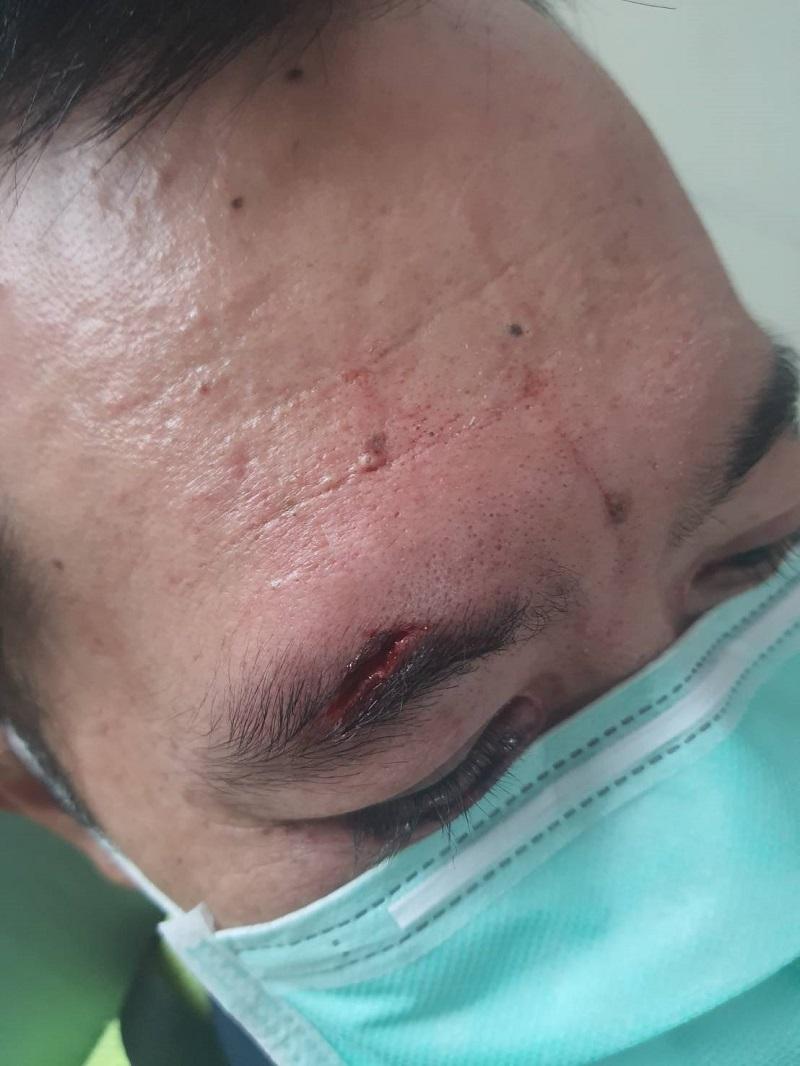 通緝犯<b>拒捕</b>施展「鐵頭功」撞警 眼角裂傷忍痛逮捕