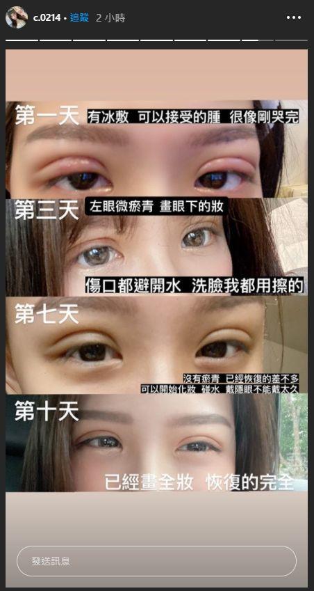 ▲青青公開自己恢復期每一階段的照片。(圖/青青IG)