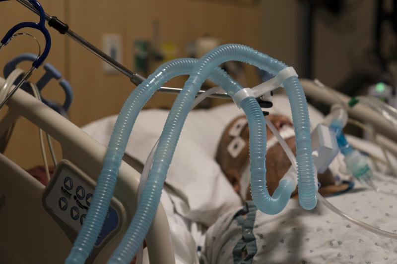 ▲新冠肺炎疫情持續在全美國延燒。圖為洛杉磯某醫院以呼吸器維生的新冠病患。(圖/美聯社/達志影像)
