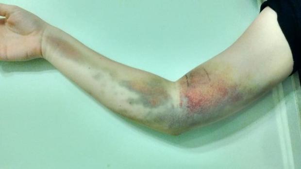 少女首次捐血就賠了手!「插錯血管」致病 支架戴4年