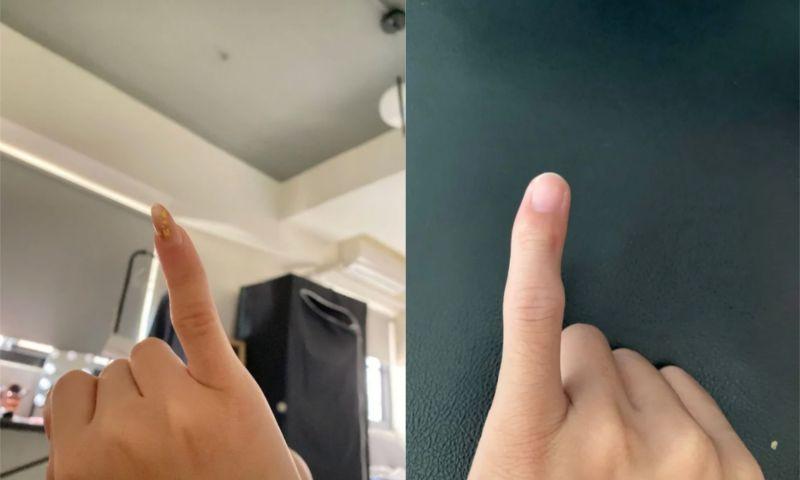 ▲也有不少深有同感的網友PO出自己的小拇指照。(圖/翻攝自《Dcard》)