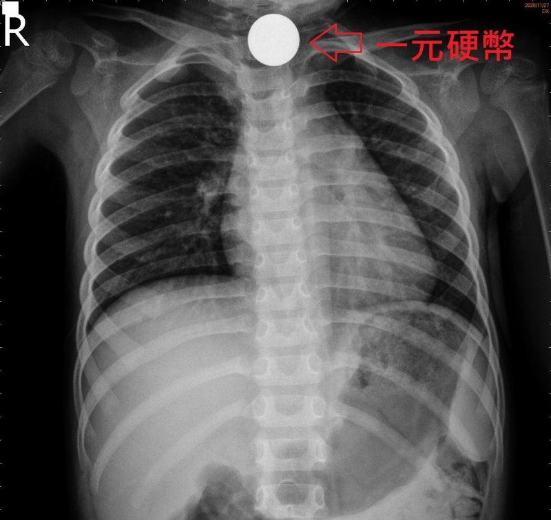 二歲女童吞下兩枚一元硬幣 醫師10分鐘解除危急