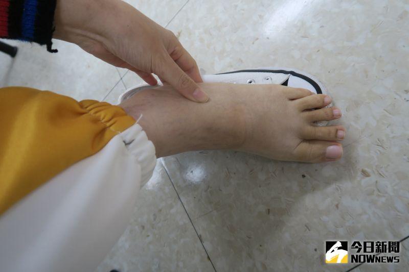▲李姓女大生目前沒水腫的腳。(圖/記者陳雅芳攝,2021.01.05)