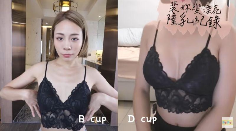 ▲裴薇公開術前(左)和術後(右)的對比。(圖/裴薇Youtube)