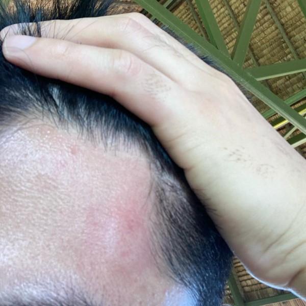 ▲他的額頭立刻紅腫了一大包(圖/FB@Puunpuun
