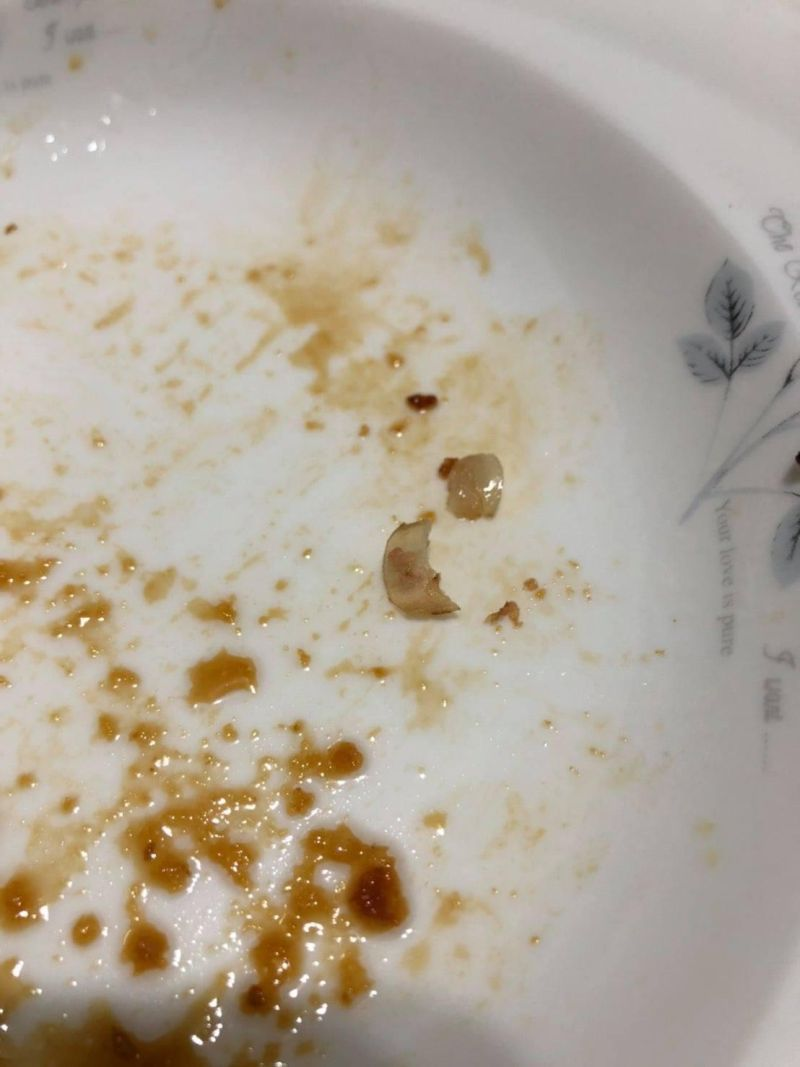 ▲原PO老公從嘴裡吐出的,竟是兩片完整的指甲。(圖/翻攝自《爆怨公社》