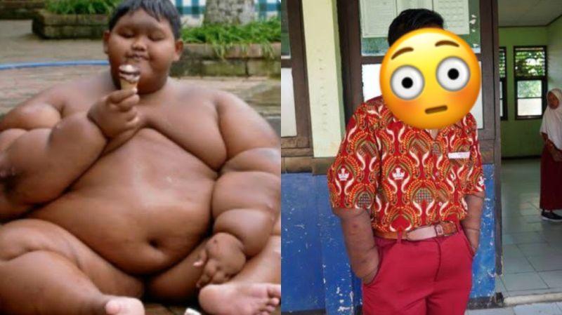 ▲有「世界最胖男孩」之稱的印尼男孩帕馬納(Arya Permana),在11歲時,體重就重達192公斤,不過現如今他也靠著手術及自律,瘦身成功。(圖/翻攝自 推特 @djsheylex)