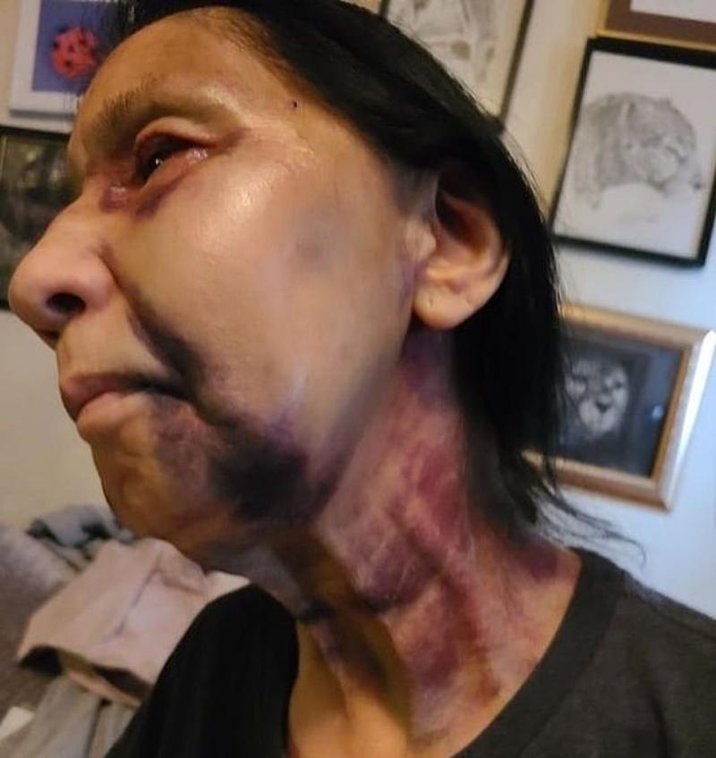 ▲美國洛杉磯一名70歲的拉丁裔老婦人貝琪,日前在搭公車時無辜遭同車乘客毆打,家人表示是因母親被誤認為亞裔。(圖/翻攝自每日郵報)