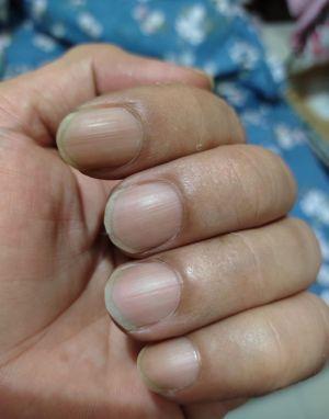 ▲醫師郭彥良分享,其實只需要觀測指甲顏色,就能快速判斷有無缺氧。(圖/翻攝自臉書粉專 不來的郭醫師 《 Dr. Brad Kuo 》)
