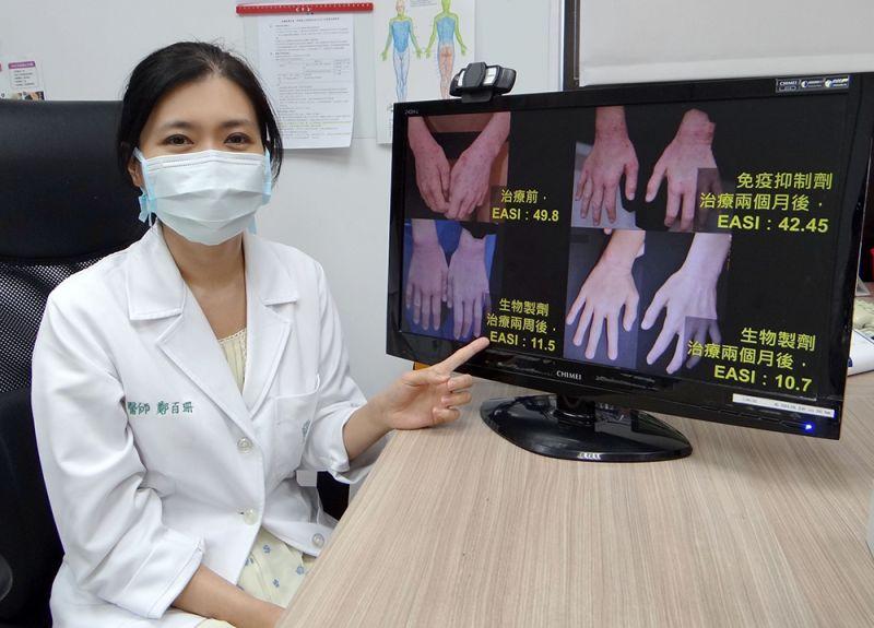 ▲奇美醫學中心皮膚科主治醫師鄭百珊表示,異位性皮膚炎不只影響生理,更會影響心理(圖/奇美醫學中心提供)