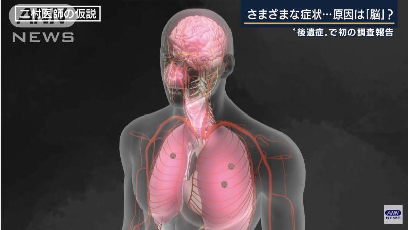 ▲日本專家指出很可能是因為呼吸系統發炎,導致腦部周圍也出現發炎症狀,進而造成腦部相關後遺症。(圖/翻攝自ANN