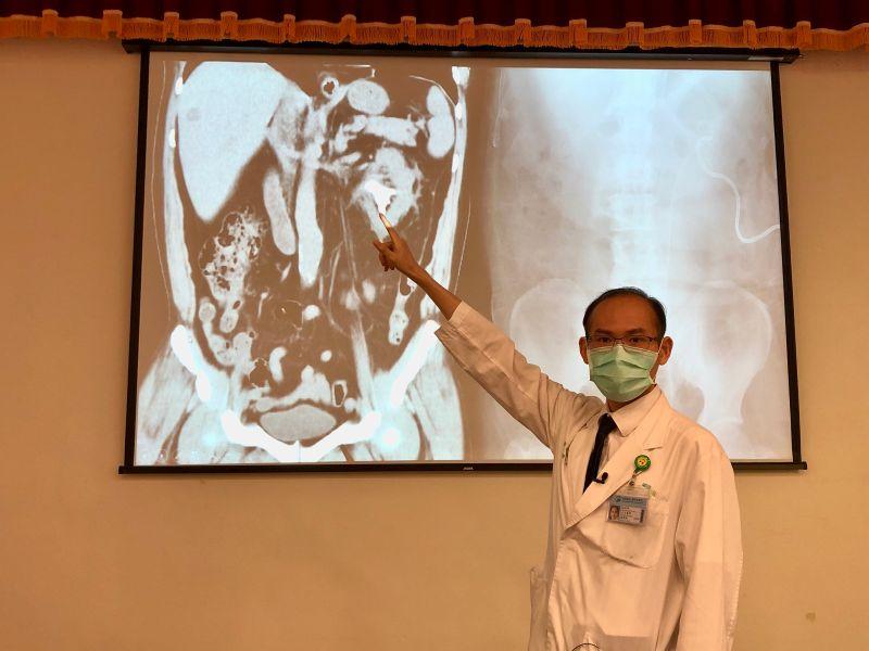 ▲魚販憋尿憋出鹿角狀腎結石,由於體積大,採取微創雙鏡聯合手術清除,術後恢復良好。(圖/中國附醫提供)