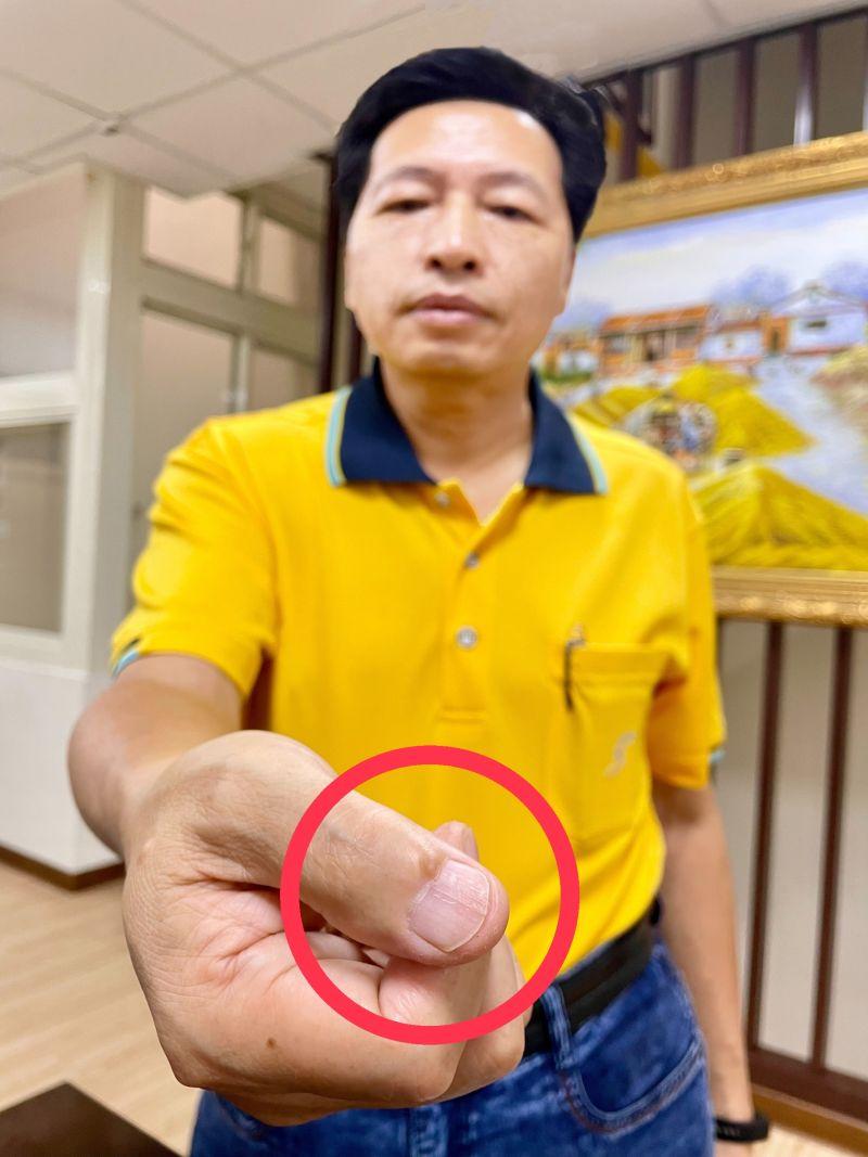 ▲鄭寶清秀出自己右手疤痕,正是數十年前在變壓器工廠打工的「切身之痛」。(圖/鄭寶清服務處提供)