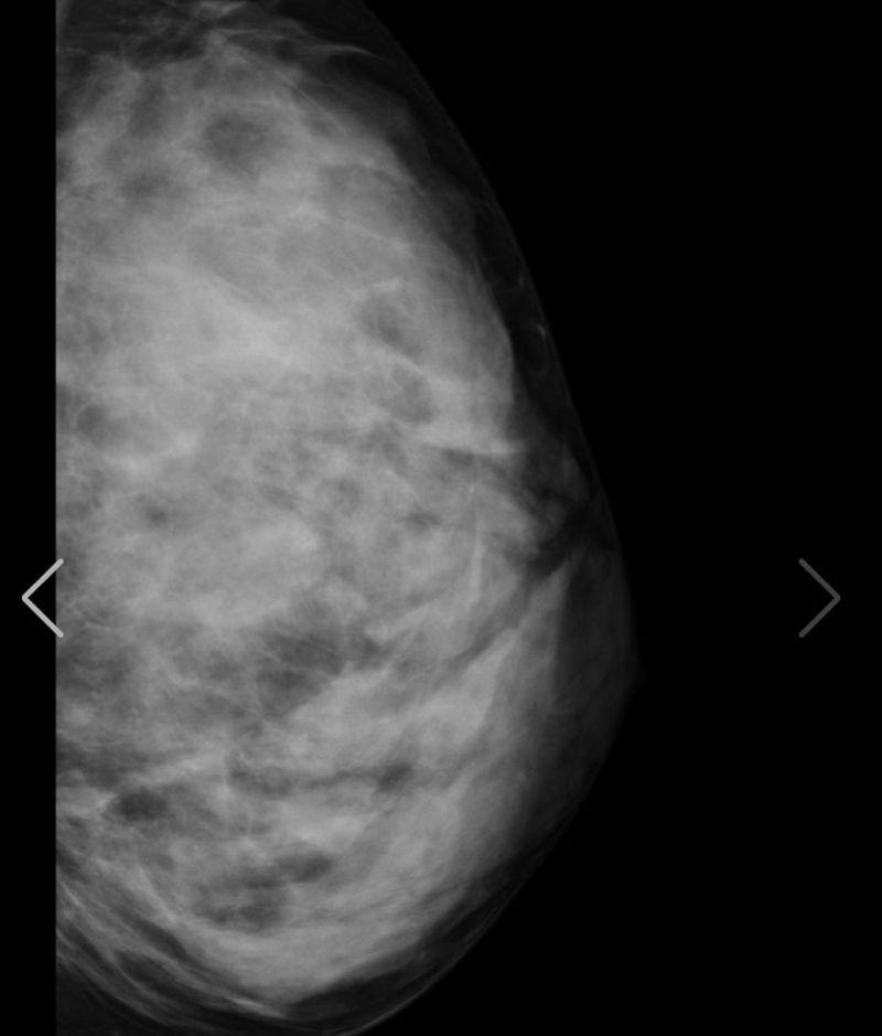 ▲▼天木純出示X光片,強調胸部沒有後天加料。(圖/天木純IG)