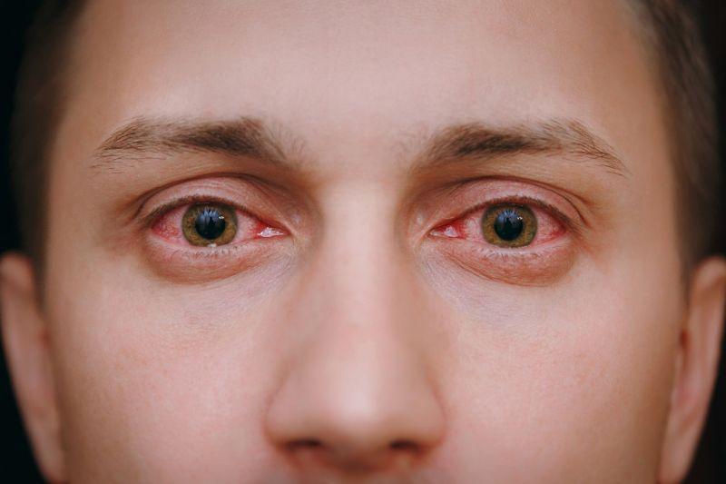 ▲乾眼症狀的類型大致上分為兩種:淚液分泌量不足的缺水型和淚液蒸發過快的蒸發型。(圖/品牌提供)
